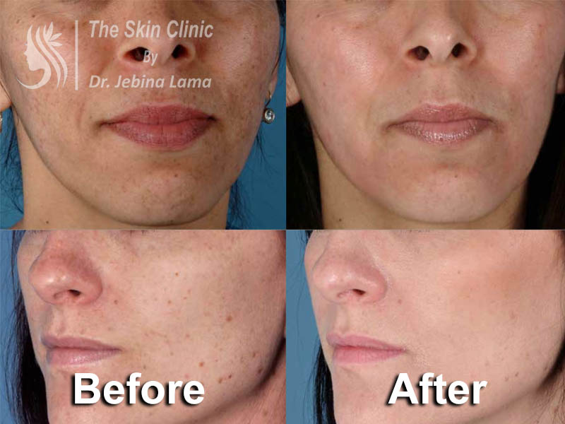 The Skin Clinic By Dr  Jebina Lama (Best place for all kinds